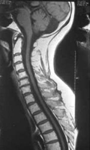 RM de médula cervicodorsal. Atrofia de médula dorsal que expresa la pérdida de los axones motores.