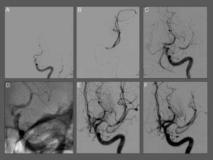 A. Angiografía que muestra oclusión en «T» de la carótida interna izquierda. B. Angiografía distal al trombo realizada a través de un micro catéter. C. Recanalización parcial de la oclusión tras la liberación inmediata del stent. D. Imagen sin sustracción digital que muestra las marcas radioopacas distales (3) y proximal (1) del stent. E y F. Resultado angiográfico final tras la trombectomía con reperfusión completa (TICI III) sin imágenes de embolias distales.