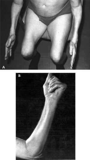 Debilidad y atrofia de cuádriceps y de los músculos flexores profundos de los dedos en pacientes con MCI.