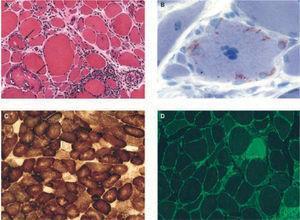 Hallazgos histológicos característicos en biopsias de pacientes con miositis por cuerpos de inclusión esporádica. A) Inflamación y vacuolas. Se observa inflamación endomisial, con linfocitos que invaden fibras musculares no necróticas de aspecto normal, y vacuolas red rimmed en 2 fibras musculares (flechas). B) Depósitos intracelulares de amiloide, fácilmente identificados con tinción de cristal violeta. C) Fibras citocromo-oxidasa (COX) negativas, indicativas de disfunción mitocondrial. D) Marcada expresión en todas las fibras del complejo mayor de histocompatibilidad clase 1 (verde) invadidas por células T o no.