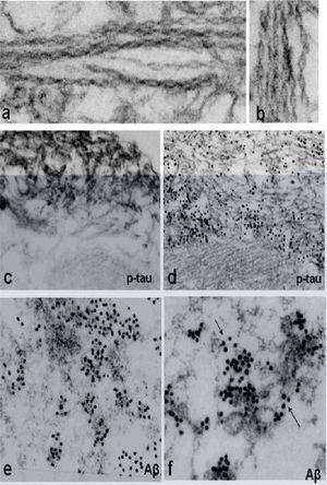 Hallazgos electromicroscópicos característicos en pacientes con miositis por cuerpos de inclusión.