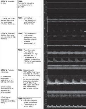 Criterios TIBI y COGIF para gradación de flujo residual en el ictus agudo.