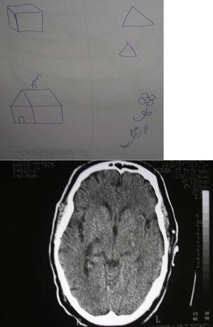 Caso número 6. Se observan elementos de negligencia espacial izquierda en la exploración de la praxia constructiva. En la tomografía computarizada se aprecia la isquemia en el territorio de la arteria coroidea anterior derecha.