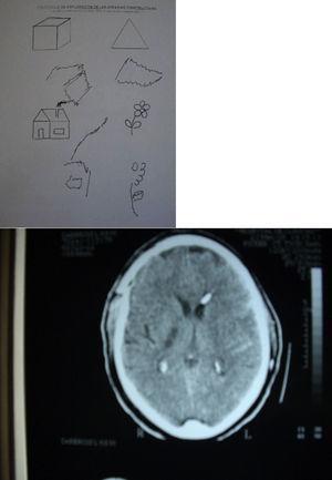 Caso número 7. Similares hallazgos que en la figura anterior. Nótese la punta del catéter de derivación ventrículo-peritoneal al nivel del asta anterior izquierda del ventrículo lateral homolateral.