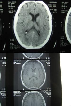 Caso número 4. Se observa a la izquierda la imagen tomográfica del infarto de arteria coroidea anterior izquierda, y abajo la imagen de resonancia magnética del mismo paciente.