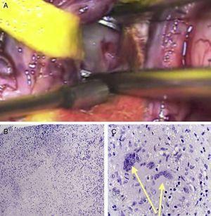A. Imagen intraquirúrgica, exéresis tumoral. B y C. Microscopia, tinción hematoxilina-eosina. B. 100 ×: áreas de necrosis caseosa, infiltrado crónico conformando granulomas y discreta fibrosis; C. 200 ×: células gigantes de Langhans rodeadas de histiocitos y corona linfocitaria (flechas).