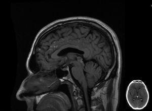 IRM de cerebro. Secuencia sagital T1 sin contraste. Corte sagital de secuencia T1 sin contraste de IRM de cerebro donde se observan imágenes espontáneamente hiperintensas que comprometen la superficie de las circunvoluciones frontales, del cíngulo, cuerpo calloso, superficie anterior de la protuberancia y la lámina cuadrigémina; todas ellas de localización leptomeníngea y con ocupación parcial de los surcos que comprometen. En margen inferior, corte axial de TC de cerebro, sin señal patológica.