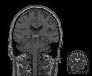 IRM de cerebro. Secuencia coronal T1 sin contraste. Corte coronal de secuencia T1 sin contraste de RM de cerebro donde se demuestra la distribución de las lesiones a nivel leptomeníngeo, en cisterna ambiens, superficie del hipocampo izquierdo y lóbulo frontal medial junto con el surco pericalloso. Se observa también lesión de las mismas características, comprometiendo el opérculo frontal izquierdo. En margen inferior, corte homólogo en secuencia T2 donde se observa ligero aumento de señal en las lesiones.