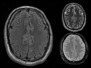 IRM de cerebro. Secuencia axial FLAIR. En la misma se observa engrosamiento cortical de las circunvoluciones en topografía medial con aumento de la señal de la leptomeninges y la sustancia gris adyacente. En margen superior, corte homólogo T2 donde se observa el aumento de señal en la topografía antes mencionada. En margen inferior, corte equivalente en secuencia GRE donde se observa ligero aumento de señal con área marcadamente hiperintensa en el interior de uno de los surcos, sugestiva de compromiso leptomeníngeo.