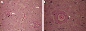 Examen histopatológico del hematoma occipital derecho evacuado quirúrgicamente. Tinción con hematoxilina-eosina. A) Se observan arterias corticales con paredes engrosadas debido al depósito transmural de un material fuertemente eosinofílico, consistente con angiopatía amiloide cerebral (AAC) (flechas). Nótese la permeabilidad conservada de la luz vascular. B) Arteria cortical con aspecto de «doble barril» o «vaso en vaso» (flecha), debido a la delaminación y la separación de la parte externa de la túnica media. Este aspecto morfológico representa una forma patológica avanzada y severa de AAC.
