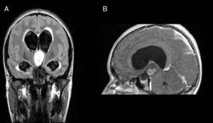 Composición de imágenes de resonancia magnética. A) Secuencia FLAIR coronal donde se observa una masa intraventricular hiperintensa bien definida e hidrocefalia triventricular. B) Corte sagital, secuencia T1 posgadolinio, que muestra leve realce heterogéneo.