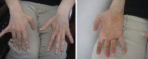 Imagen que muestra atrofia de músculos interóseos de ambas manos y de eminencia tenar derecha.