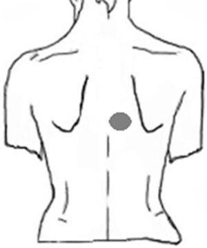 Localización del prurito a nivel paravertebral derecho.