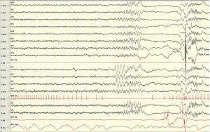 EEG poligráfico de fase N2 de sueño en el que se objetiva la presencia de una bradicardia progresiva seguida de un periodo de asistolia con cambios significativos en la actividad bioeléctrica cerebral. Sens: 7μV/mm. Constante de tiempo: 0,3 s. Filtro de altas frecuencias: 30Hz.
