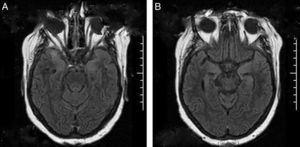 RMN de encéfalo. En proyección de las regiones corticosubcorticales de ambos polos temporales, corteza insular y ambos hipocampos se observa hiperintensidad de señal en pulso Flair (A y B).