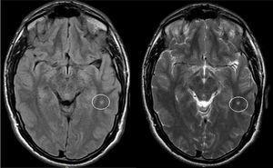 Lesión isquémica lacunar temporal izquierda en el paciente número 2.