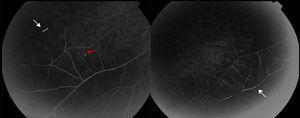 Retinofluoresceinografía. Hiperfluorescencia vascular (flecha blanca), con zonas de falta de relleno vascular. Placa de Gass (flecha negra).