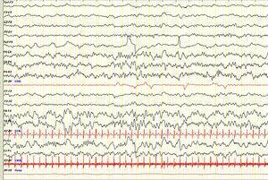 Primer EEG (vigilia). Se objetiva una asimetría de la actividad bioeléctrica cerebral, apreciándose un enlentecimiento difuso de la misma en áreas hemisféricas derechas, así como algunas ondas agudas de predominio temporo-parietal. Sens: 7μV/mm. Constante de tiempo: 0,3s; filtro de altas frecuencias: 30Hz.