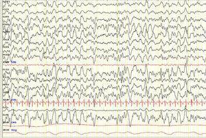 EEG evolutivo anual (fase N3 del sueño). Se aprecia una disminución de los hallazgos patológicos iniciales. Sens: 7μV/mm. Constante de tiempo: 0,3s; filtro de altas frecuencias: 30Hz.