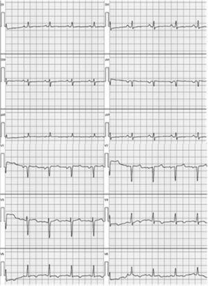 Electrocardiograma de 12 derivaciones con trastorno de la repolarización ventricular tipo T negativas de V4 a V6.
