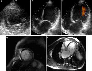 Ecocardiograma en eje corto paraesternal izquierdo a nivel medioapical en el que se observa un aumento del trabeculado con aspecto espongiforme en segmentos inferolaterales (A). Vista de 4 cámaras con trabéculas en cara lateral medioapical (B) con flujo intertrabecular visible con Doppler color (C). Mismos ejes en RM cardíaca en las que se observan trabeculaciones prominentes con razón miocardio compacto/no compacto >2,3, alcanzando el valor de 4 a nivel lateral medioapical (D y E).