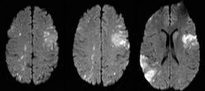 Imágenes axiales de cerebro en secuencias ponderadas de difusión, donde se aprecian múltiples lesiones isquémicas en distintos territorios vasculares.