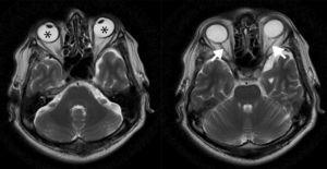 RM potenciada en T2 (plano axial). Convergencia de los globos oculares en relación con estrabismo (asteriscos) y discreta atrofia de los nervios ópticos (flechas).