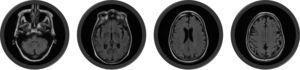 RM encefálica, secuencia T2 FLAIR (2 de agosto del 2012) (3,0 tesla). Lesiones hiperintensas en el efecto T2 FLAIR. Puede observarse que la sustancia blanca está notablemente preservada y la patología predomina en la sustancia gris.