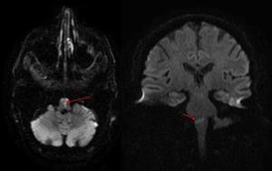 RM de cerebro (A, DWI axial y B, DWI coronal): imagen restrictiva en difusión a nivel del bulbo raquídeo y unión bulbo-protuberancial predominantemente central con ligera lateralización hacia la izquierda.
