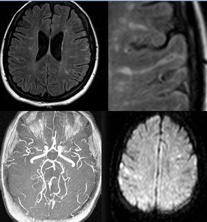 RM cerebral. Múltiples focos hiperintensos en T2 y FLAIR en la sustancia blanca de ambos hemisferios cerebrales adoptando en algún caso una morfología lineal siguiendo la dirección de los surcos corticales. La secuencia angiográfica Time Of Flight (TOF) del polígono de Willis muestra un calibre reducido en ambas arterias cerebrales medias en su segmento proximal (M1). Focos de restricción de la difusión en relación con pequeños infartos agudos.