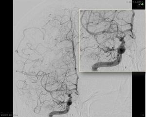ASD carotídea interna derecha, proyección frontal. Disminución progresiva del calibre de la porción intracraneal de la ACI y sus ramas principales (ACM y ACA), con presencia de múltiples neovasos colaterales finos, tanto en torno al polígono de Willis como en la convexidad, y numerosas anastomosis piales entre los territorios de la ACM y ACA.