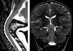 Axial T2, a la izquierda corte axial a nivel del mesencéfalo, hiperintensidad de señal del tronco, con normalización en el control; a la derecha, corte axial a nivel del bulbo y cerebelo, hiperintensidad de señal en bulbo y núcleos dentados del cerebelo, con normalización en el control.