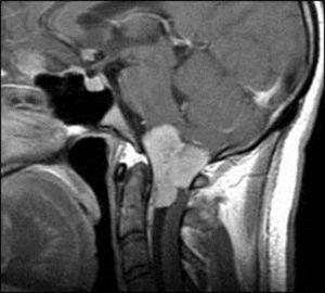 RM sagital T1 con gadolinio: meningioma de la charnela cráneo-raquídea con realce dural.