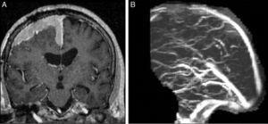 A) RM Coronal T1 con gadolinio: lesión extraaxial con crecimiento en placa y realce intenso y homogéneo en la convexidad y la hoz cerebral. B) Angio-RM en tiempo venoso: pérdida de señal en el sector anterior del seno longitudinal superior. Dx: meningioma de la convexidad con compromiso del seno venoso.