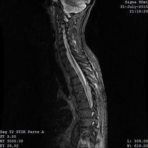 Resonancia magnética (sagital STIR): lesión intracanalicular que comprime e infiltra la médula espinal con afinamiento de la misma.