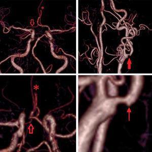 Angiotomografía de vasos intra y extracraneales: A, C) Hipoplasia severa del segmento A1 derecho (flecha hueca); terminación abrupta del segmento A2 derecho (asterisco). B) Placa ulcerada en bulbo carotídeo izquierdo (flecha gruesa). D) Lesión ulcerosa en sacabocado (flecha fina).