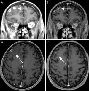 RMN cerebral con contraste: A) Corte coronal a nivel frontal, imagen inicial. Se aprecia tuberculoma en placa, en región frontal derecha, asociado a importante edema perilesional (flecha). B) Corte coronal, 3 meses más tarde. Disminución marcada del tuberculoma, con resolución del edema perilesional (flecha). C) Corte axial inicial: Tuberculoma en región frontal derecha, con importante edema perilesional (flecha). D) Corte axial, 3 meses más tarde, con disminución marcada del tuberculoma y resolución del edema perilesional (flecha).