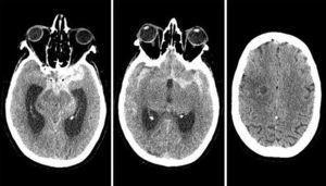 Hemorragia subaracnoidea en TC craneal.