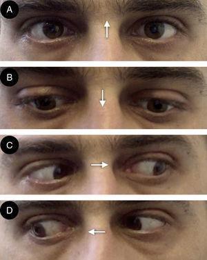 A) Parálisis de la elevación de la mirada con aparición de nistagmo convergente retractorio. B) Depresión de la mirada comprometida en menor grado que la elevación. C y D) Indemnidad de la mirada lateral. Las flechas indican la dirección de la mirada.