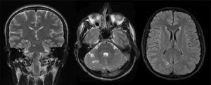 Resonancia magnética encefálica. Se observan múltiples lesiones isquémicas de la circulación vertebro-basilar hiperintensas en secuencias T2 y FLAIR.