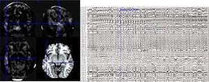 Imagen RM T1 normal. Posterior a su procesamiento con VM, la intersección de las líneas muestra el área de alteración encontrada en la imagen de extensión. Registro EEEG donde evidencia el compromiso del polo temporal (electrodo PT).