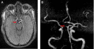 Angiografía por RM de vasos intracraneales. Oclusión completa del segmento precomunicante (P1) de la ACP derecha (flechas).