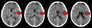Tomografía cerebral realizada 24 h tras la trombólisis.