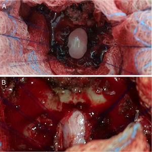 A) Vista durante la cirugía del quiste que sale a tensión tras la disección de la aracnoides y de su pared. B) Exposición del espacio subdural espinal a nivel de C2-C3, con signos de aracnoiditis y fibrosis con gran adherencia a la duramadre de la cual se encuentra traccionada lateralmente con suturas.
