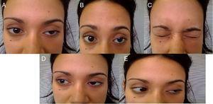 Imagen que muestra: A. Ptosis palpebral izquierda, reducción de pliegues frontales y abducción del ojo izquierdo. B. Reducción de pliegues frontales. C. Paresia oclusión bipalpebral. D. Paresia recto lateral derecho, recto medial izquierdo. E. Reducción de pliegues frontales.