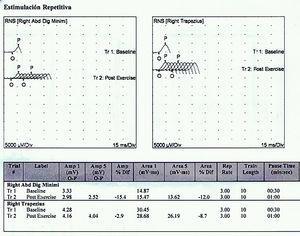 Test de estimulación repetitiva, negativo para defecto de la unión neuromuscular.