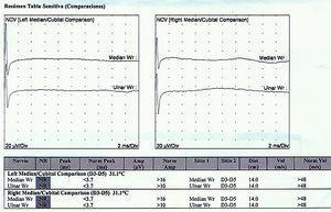 Velocidad de conducción nerviosa que muestra imposibilidad de mostrar registro distal y proximal.