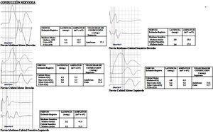 Electrofisiología que muestra prolongación de las latencias distales y proximales, con neuroconducción conservada.