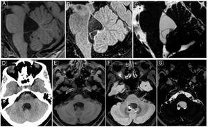 Neuroimágenes del primer caso en cortes sagitales (secuencias de resonancia magnética; imágenes en TFE potenciada en T1 [A], FLAIR [B] y BFFE [C]) y en cortes axiales (tomografía axial computarizada (D), resonancia magnética en TFE T1 [E], FLAIR [F] y BFFE [G]). Se evidencian 3 lesiones viables en el cuarto ventrículo, en corte sagital, una de las cuales muestra un nódulo en su extremo superior. En la secuencia BFFE se visualizan el escólex y las lesiones quísticas con mejor definición, diferenciándose del líquido cefalorraquídeo.