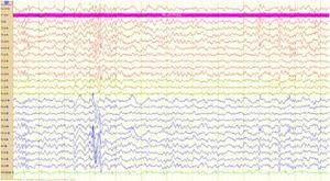 Trazado electroencefalográfico de telemetría con electrodos de superficie y aplicación adicional de electrodos esfenoidales, que muestra paroxismos de puntas y ondas agudas en regiones temporales con predominio derecho durante el sueño N2.